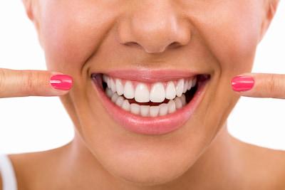 כל הדרכים לעשות שיניים לבנות