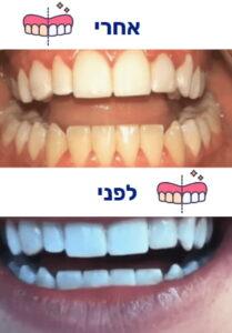 הלבנת שיניים לפני ואחרי תמונה 1