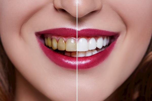 הלבנת-שיניים-לפני-ואחרי-3