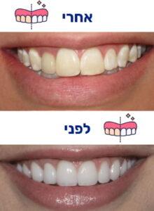 הלבנת שיניים תמונה 4 לפני ואחרי