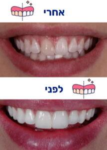 הלבנת שיניים לפני ואחרי תמונה 2