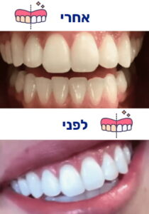 הלבנת שיניים לפני ואחרי תמונה 3