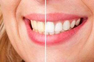 חיוך אישה אחרי ולפני הלבנת שיניים