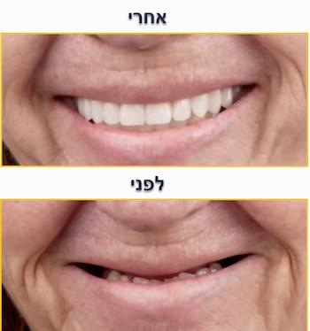 חיוך השתלת שיניים לפני ואחרי