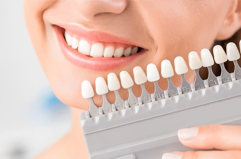 קשת צבעים עבור השתלת שיניים