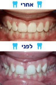 תמונה של לפני ואחרי יישור שיניים
