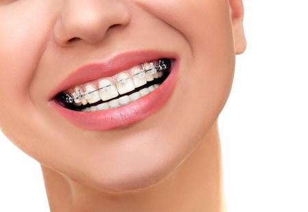 חיוך עם גשר לאחר יישור שיניים לפני ואחרי