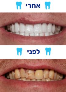 ציפוי שיניים למינייט לפני אחרי תמונה 1