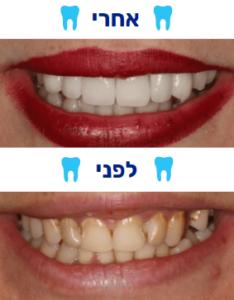 ציפוי שיניים למינייט לפני אחרי תמונה 2