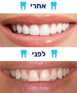 ציפוי שיניים למינייט לפני אחרי הטיפול