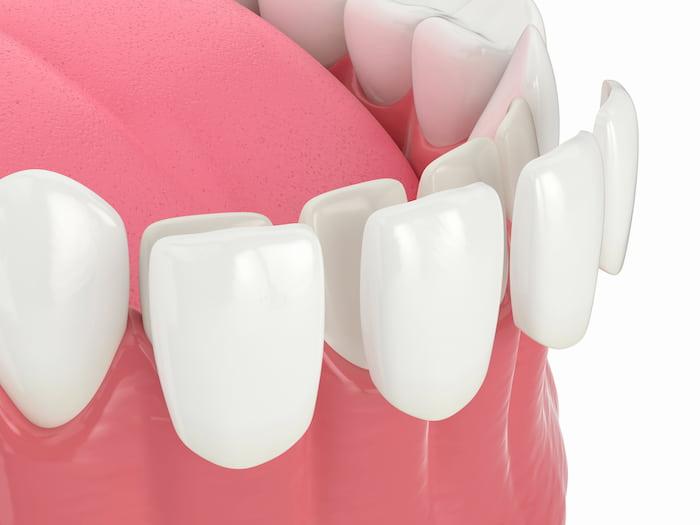 הליך ציפוי שיניים